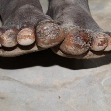 APPEL AU DON : Besoin de chaussures pour enfant pour le Kenya